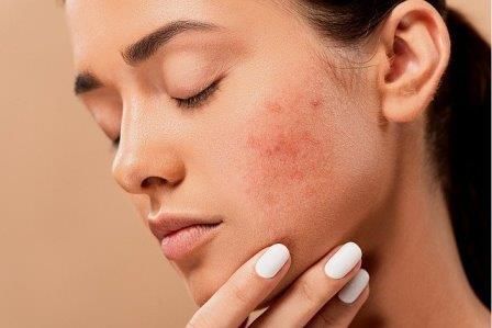 How To Get Rid Of Pimples : Best Tips For Healthy Skin