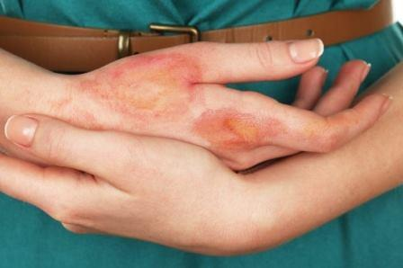 How to Treat Burn Injury at Home